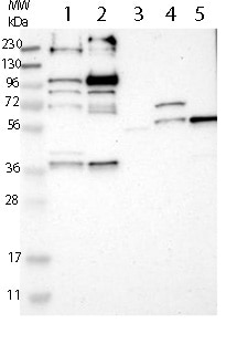 Western blot - Anti-LRCH2 antibody (ab121182)