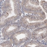 Immunohistochemistry (Formalin/PFA-fixed paraffin-embedded sections) - Anti-LRCH2 antibody (ab121182)