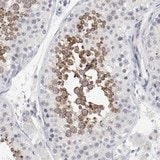 Immunohistochemistry (Formalin/PFA-fixed paraffin-embedded sections) - Anti-FSCB antibody (ab121201)