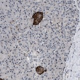 Immunohistochemistry (Formalin/PFA-fixed paraffin-embedded sections) - Anti-ZDHHC15 antibody (ab121203)