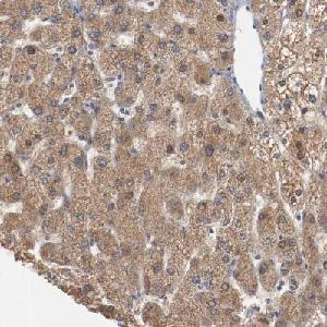 Immunohistochemistry (Formalin/PFA-fixed paraffin-embedded sections) - Anti-ERICH1 antibody (ab121206)