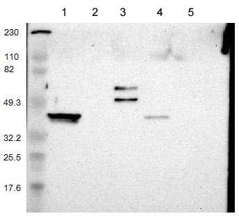 Western blot - Anti-ERICH1 antibody (ab121206)