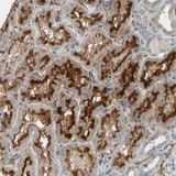 Immunohistochemistry (Formalin/PFA-fixed paraffin-embedded sections) - Anti-SUSD2 antibody (ab121214)