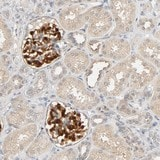 Immunohistochemistry (Formalin/PFA-fixed paraffin-embedded sections) - Anti-TPPP2 antibody (ab121215)