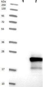 Western blot - Anti-TPPP2 antibody (ab121215)