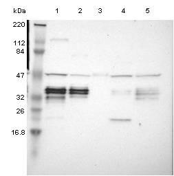 Western blot - Anti-C1orf198 antibody (ab121220)