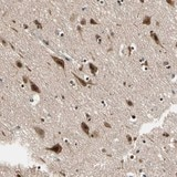Immunohistochemistry (Formalin/PFA-fixed paraffin-embedded sections) - Anti-Ephexin-1 antibody (ab121274)