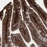 Immunohistochemistry (Formalin/PFA-fixed paraffin-embedded sections) - Anti-KIAA0195 antibody (ab121280)