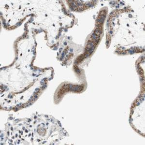 Immunohistochemistry (Formalin/PFA-fixed paraffin-embedded sections) - Anti-TATA Element Modulatory Factor 1 antibody (ab121290)
