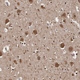 Immunohistochemistry (Formalin/PFA-fixed paraffin-embedded sections) - Anti-Sez6 antibody (ab121347)