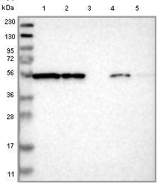 Western blot - Anti-FKBP9 antibody (ab121371)