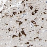 Immunohistochemistry (Formalin/PFA-fixed paraffin-embedded sections) - Anti-MYEOV antibody (ab121387)