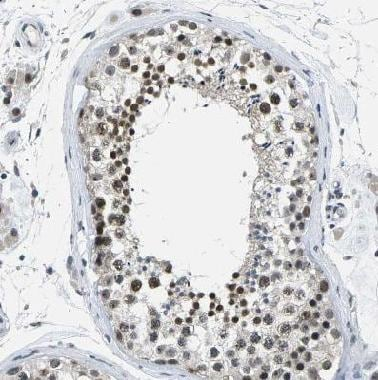 Immunohistochemistry (Formalin/PFA-fixed paraffin-embedded sections) - Anti-NSRP1 antibody (ab121478)