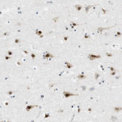 Immunohistochemistry (Formalin/PFA-fixed paraffin-embedded sections) - Anti-RNF38 antibody (ab121487)