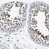 Immunohistochemistry (Formalin/PFA-fixed paraffin-embedded sections) - Anti-MEA1 antibody (ab121543)