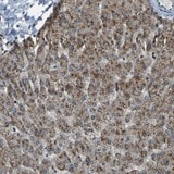Immunohistochemistry (Formalin/PFA-fixed paraffin-embedded sections) - Anti-SVOPL antibody (ab121553)
