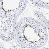 Immunohistochemistry (Formalin/PFA-fixed paraffin-embedded sections) - Anti-SPATA3 antibody (ab121566)