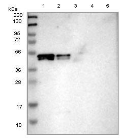Western blot - Anti-SKAR antibody (ab121568)