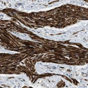 Immunohistochemistry (Formalin/PFA-fixed paraffin-embedded sections) - Anti-ERGIC1 antibody (ab121574)