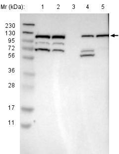 Western blot - Anti-RASGRF2 antibody (ab121577)