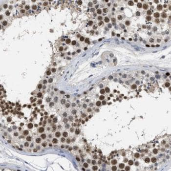 Immunohistochemistry (Formalin/PFA-fixed paraffin-embedded sections) - Anti-GGNBP2 antibody (ab121583)