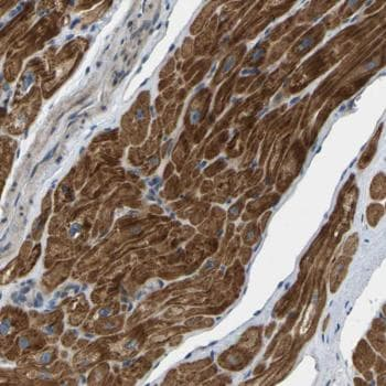 Immunohistochemistry (Formalin/PFA-fixed paraffin-embedded sections) - Anti-HIGD2B antibody (ab121586)