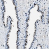 Immunohistochemistry (Formalin/PFA-fixed paraffin-embedded sections) - Anti-C16orf79 antibody (ab121591)