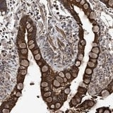 Immunohistochemistry (Formalin/PFA-fixed paraffin-embedded sections) - Anti-C22orf15 antibody (ab121604)