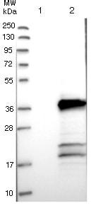 Western blot - Anti-TMEM53 antibody (ab121648)