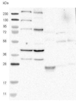 Western blot - Anti-C9orf172 antibody (ab121654)