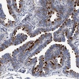 Immunohistochemistry (Formalin/PFA-fixed paraffin-embedded sections) - Anti-C7orf57 antibody (ab121660)