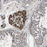 Immunohistochemistry (Formalin/PFA-fixed paraffin-embedded sections) - Anti-C9orf21 antibody (ab121661)