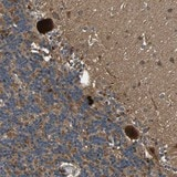 Immunohistochemistry (Formalin/PFA-fixed paraffin-embedded sections) - Anti-MRPL27 antibody (ab121671)
