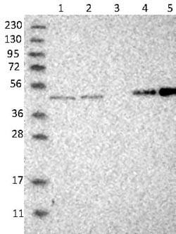 Western blot - Anti-SMAP2 antibody (ab121675)