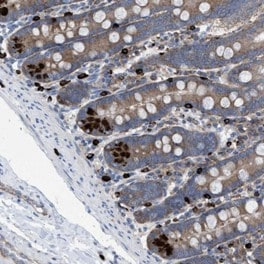 Immunohistochemistry (Formalin/PFA-fixed paraffin-embedded sections) - Anti-C7orf51 antibody (ab121711)