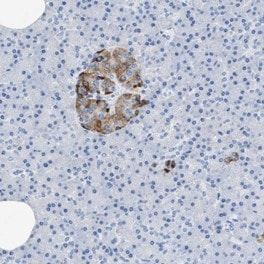 Immunohistochemistry (Formalin/PFA-fixed paraffin-embedded sections) - Anti-SLFN13 antibody (ab121713)