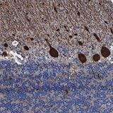 Immunohistochemistry (Formalin/PFA-fixed paraffin-embedded sections) - Anti-TXNDC17 antibody (ab121725)