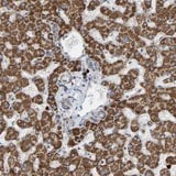 Immunohistochemistry (Formalin/PFA-fixed paraffin-embedded sections) - Anti-B9D1 antibody (ab121726)