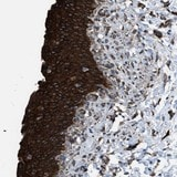 Immunohistochemistry (Formalin/PFA-fixed paraffin-embedded sections) - Anti-CCDC40 antibody (ab121727)