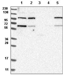 Western blot - Anti-KIAA0753 antibody (ab121736)