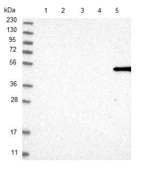 Western blot - Anti-MFSD6L antibody (ab121742)