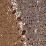 Immunohistochemistry (Formalin/PFA-fixed paraffin-embedded sections) - Anti-MSL1v1 antibody (ab121762)