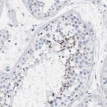 Immunohistochemistry (Formalin/PFA-fixed paraffin-embedded sections) - Anti-SPACA3 antibody (ab121768)