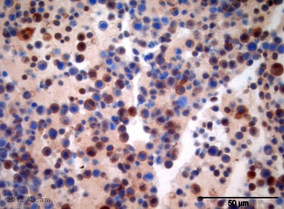 Immunohistochemistry (Formalin/PFA-fixed paraffin-embedded sections) - Anti-B7-H6 antibody (ab121794)