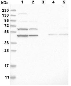 Western blot - Anti-AdSS 2 antibody (ab121810)