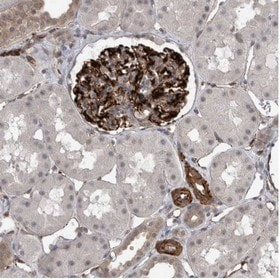 Immunohistochemistry (Formalin/PFA-fixed paraffin-embedded sections) - Anti-FAM83H antibody (ab121828)