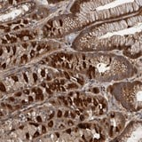Immunohistochemistry (Formalin/PFA-fixed paraffin-embedded sections) - Anti-XKR6 antibody (ab121845)