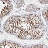 Immunohistochemistry (Formalin/PFA-fixed paraffin-embedded sections) - Anti-C6orf35 antibody (ab121861)