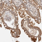 Immunohistochemistry (Formalin/PFA-fixed paraffin-embedded sections) - Anti-TMPPE antibody (ab121904)