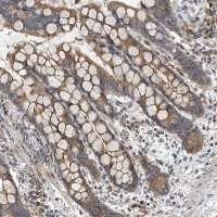 Immunohistochemistry (Formalin/PFA-fixed paraffin-embedded sections) - Anti-TMEM199 antibody (ab121907)
